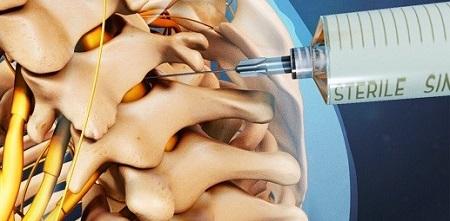 تزریق استروئید در فضای اپیدورال (ESI)